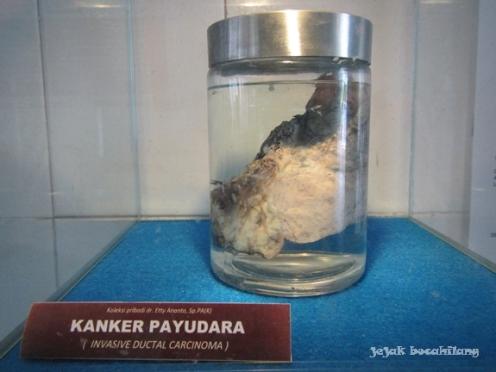 contoh kanker payudara di Museum Kanker Indonesia